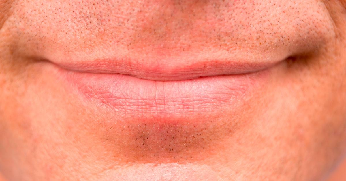 Herpes bucal – O que é? Como surge? Como se trata?